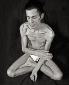 anoressia-maschile-1