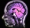 schizofrenia-decadimento-cognitivo